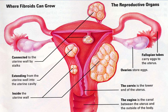 where-fibroids-grow